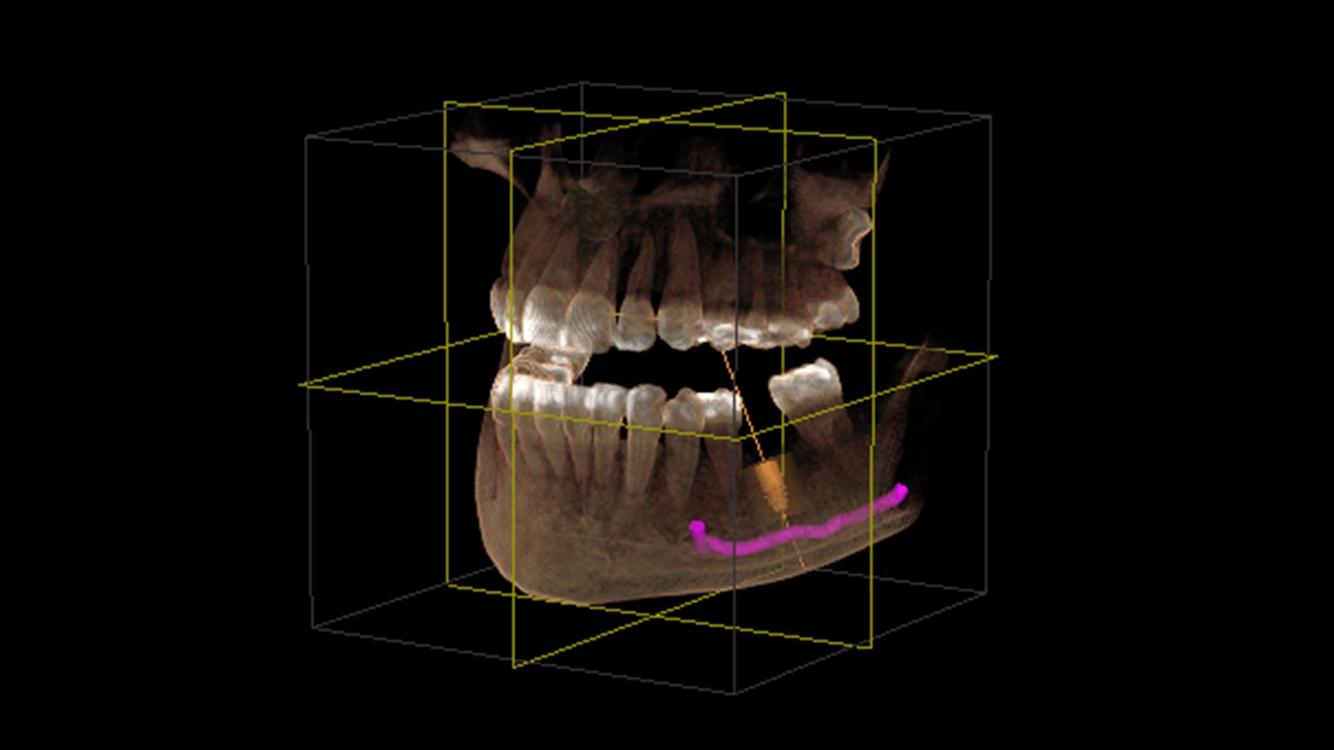 DVT – 3D Implantat Salzburg