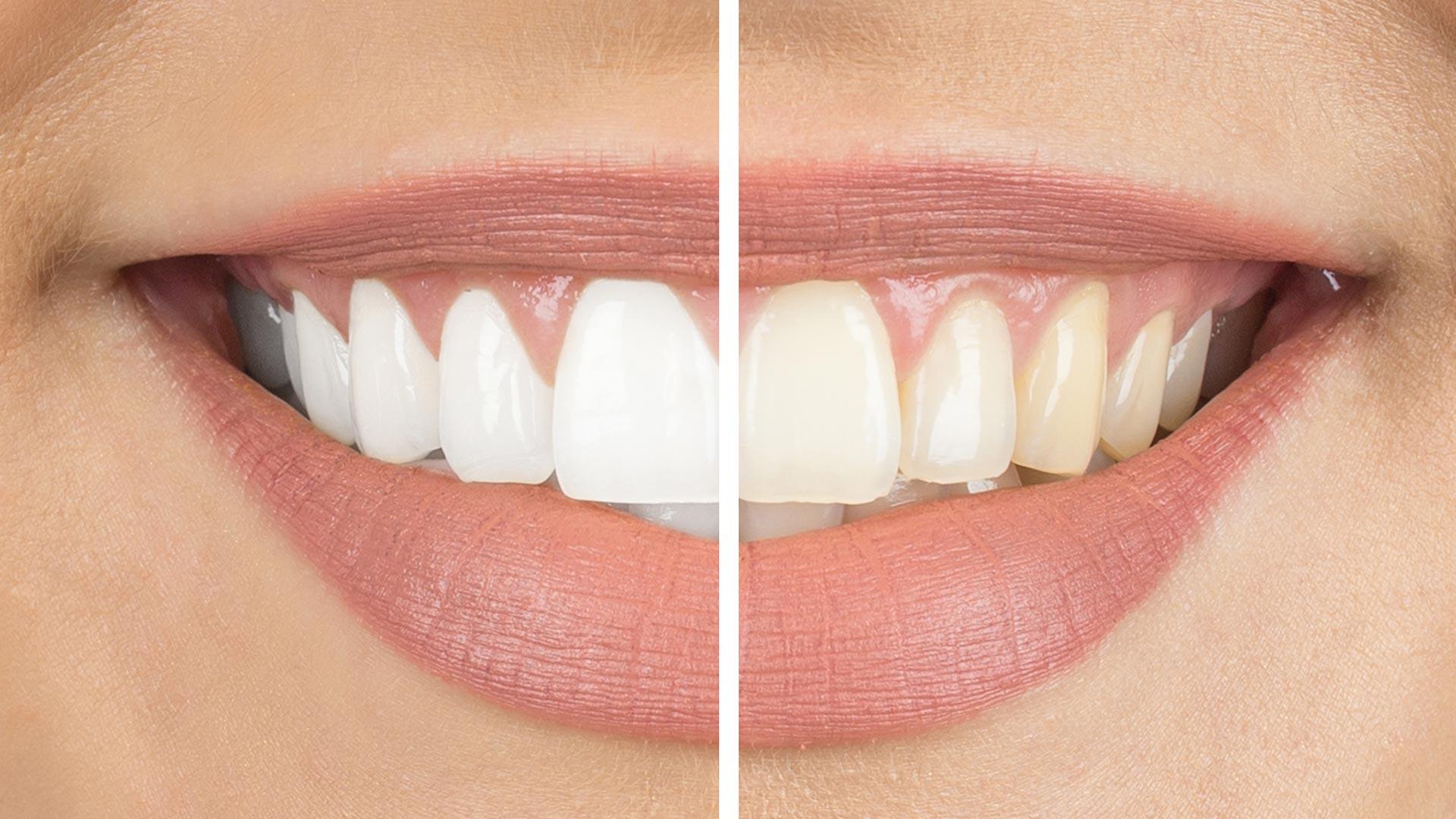Bleaching Salzburg für weiße Zähne